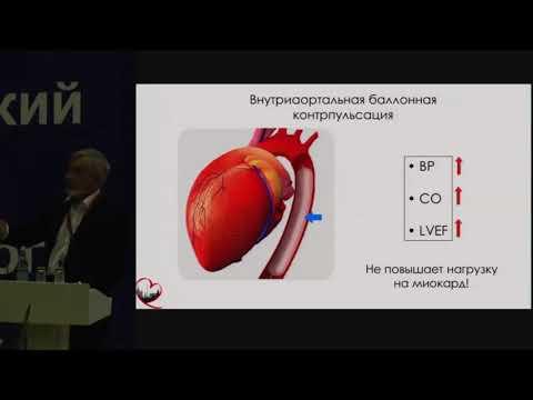А.В. Шпектор, Шок при остром инфаркте миокарда: дифференциальный диагноз и лечение