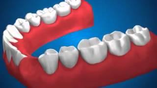 Ортопедическая стоматология   Мостовидные протезы(, 2014-04-14T17:50:19.000Z)