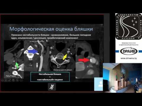 Нестенозирующий атеросклероз брахиоцефальных артерий