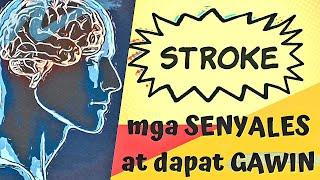 STROKE: mga sensyales at dapat gawin - by Sir Da