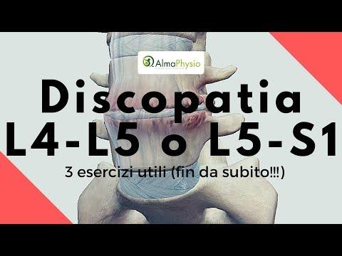 discopatia degenerativa c5-c6 y c6-c7
