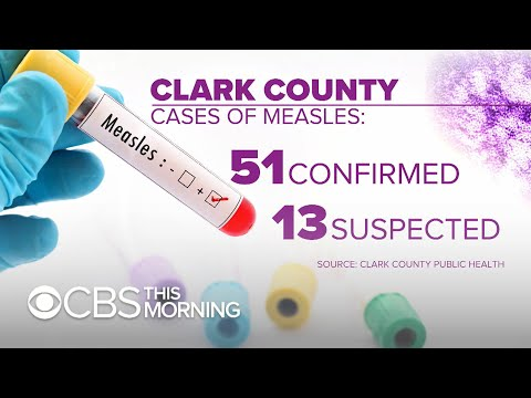 "Washington state weighs vaccination bill amid ""critical"" measles outbreak"