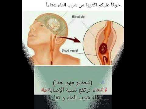 نصائح طبية يجب معرفتها