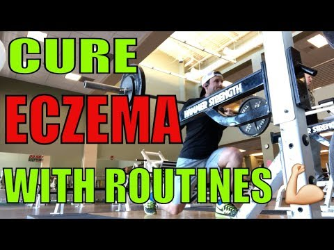 How to cure eczema with routines
