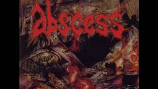 Watch Abscess Wormwind video