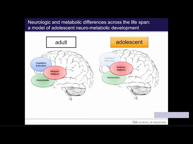 Teenage Brains on Sugar: Brain Response to Monosaccharide Ingestion in Adolescent Obesity