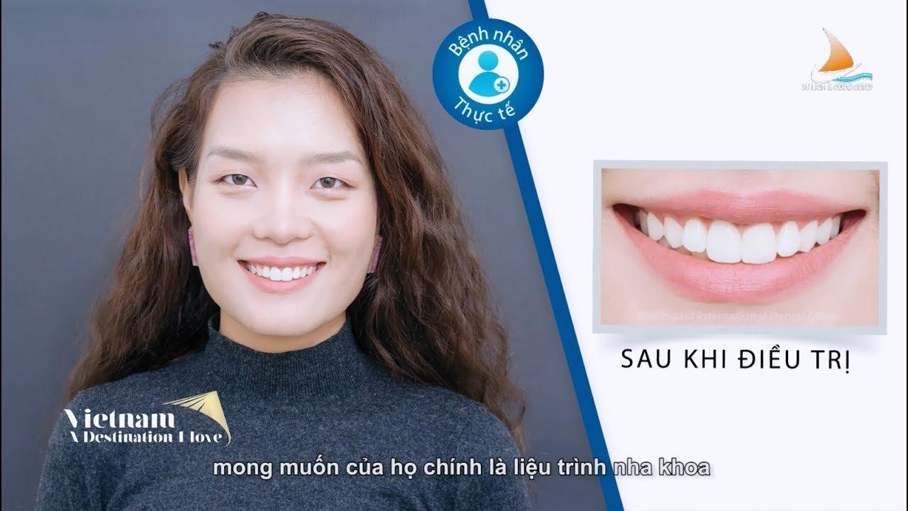 Bone Graft Bone Reconstruction Bone Augmentation For Dental Implants
