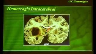 Sintomas nos coágulo cerebral vascular de sanguíneo acidente