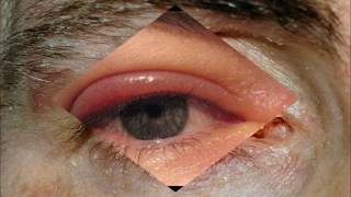Eyebrow & Eyelash Diseases, Conditions, and Disorders: Crab Lice, Demodex Mites, Alopecia