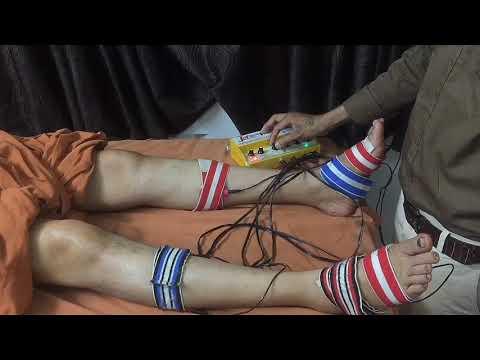 Acs Acupressure Stimulator Jet Electrotherapy Device |  पैरों में झनझनाहट और सूजन का इलाज