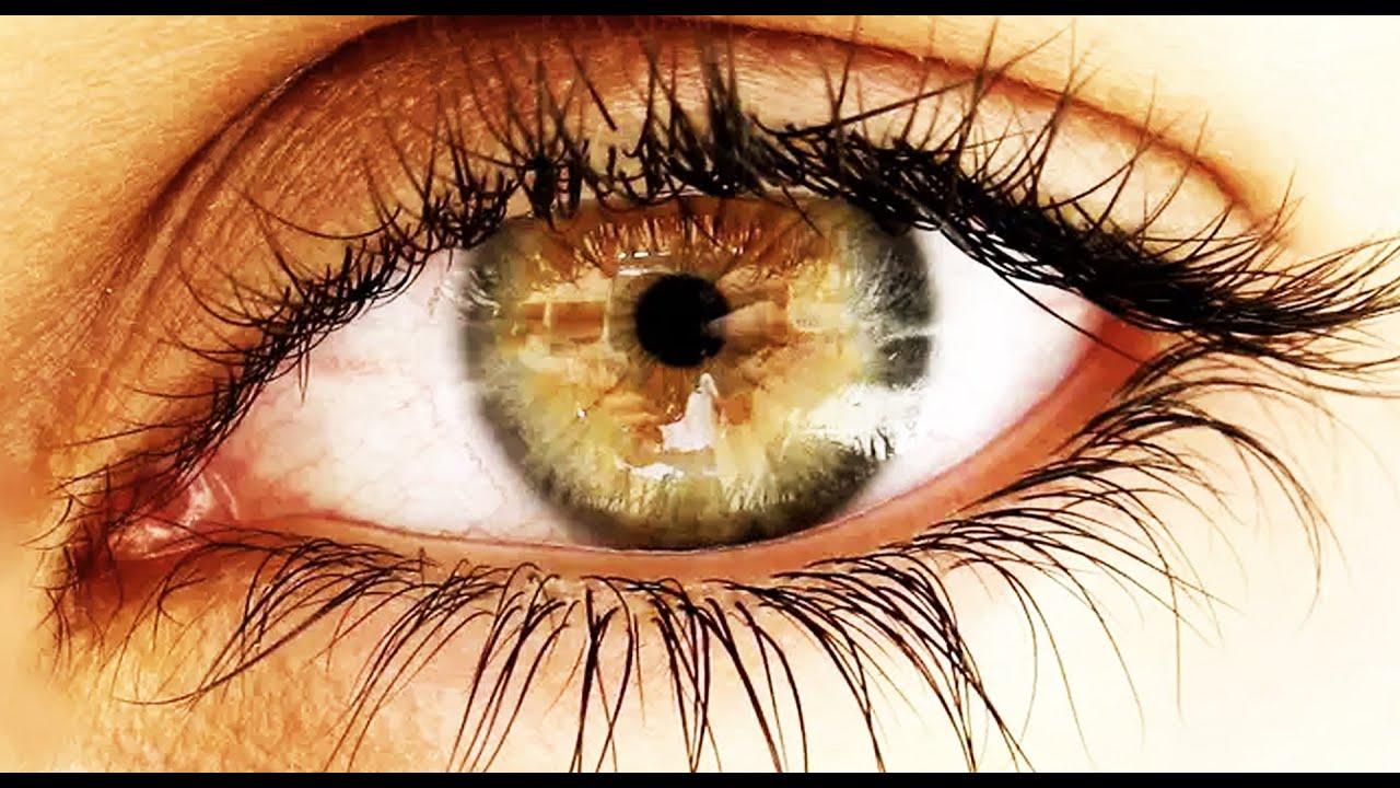 Sağ Gözüm Kısık