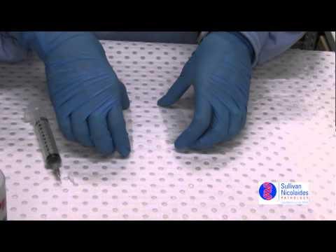 FNA slide preparation II - two slide method