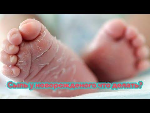 Сыпь у новорожденного что делать