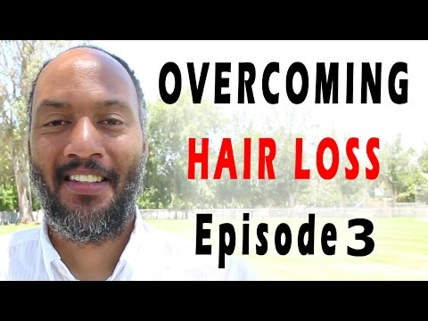 How To Overcome Hair Loss ~ Episode 3