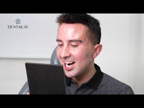 Rafael traveled from Ireland to get a Hollywood Smile in Turkey after an ACCIDENT!