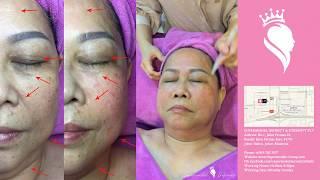 拨筋刮痧面部疗法全程现场操作!专业纹绣师与美容治疗师: Joey
