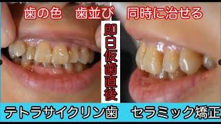 ぴょこっと飛び出た八重歯も気になっていた歯並びも、たった60分の仮歯...