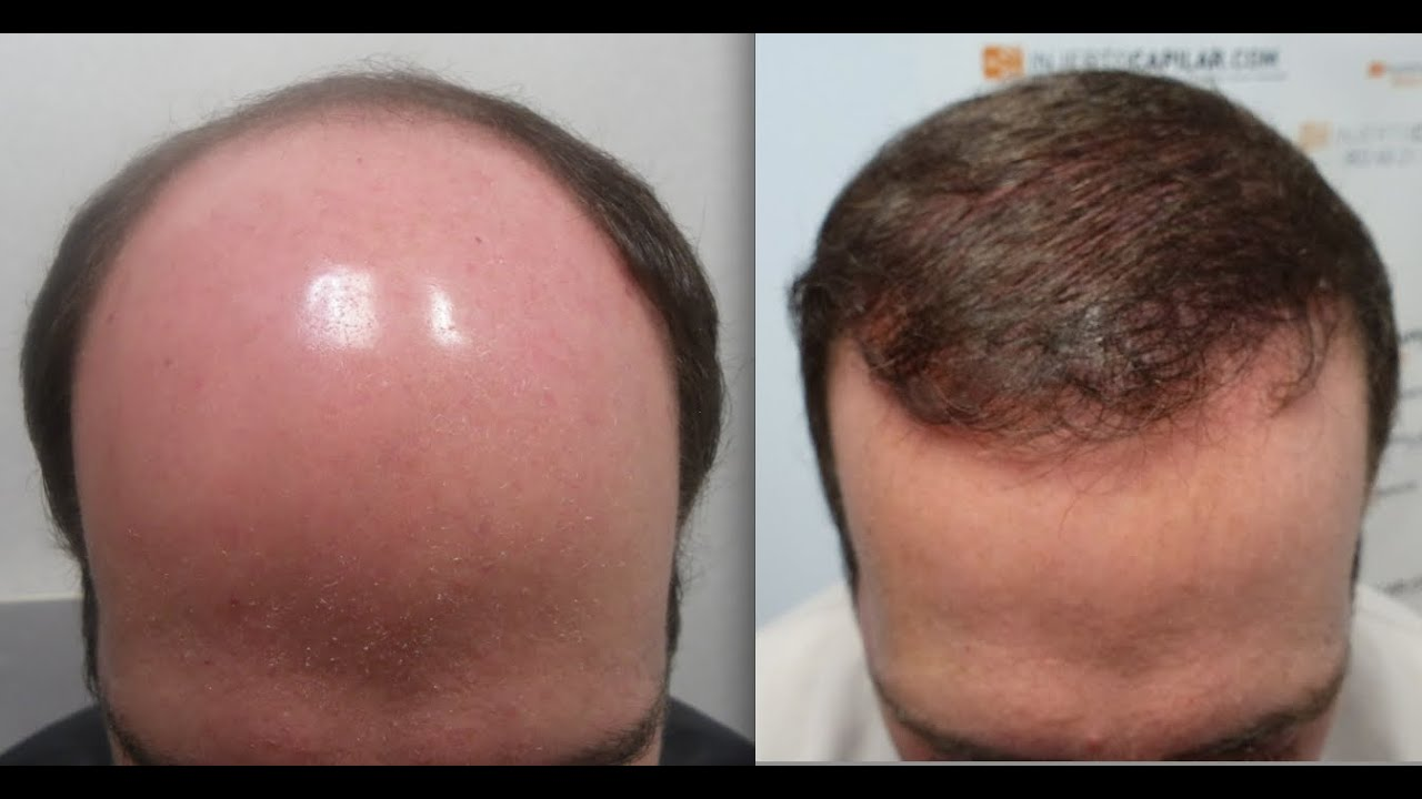 Hair transplant in dubai video