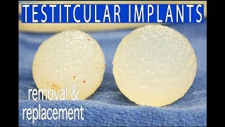Testicular Implants - Removal and Replacement of Silicone with Saline Implants