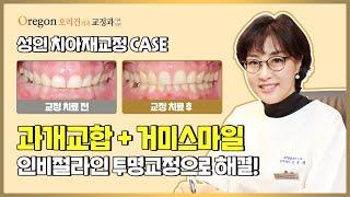 인비절라인 치아교정 장치로 【성인 치아재교정】한 CAS…