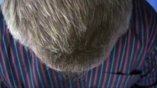 Seattle Hair Transplant Call 1.800.859.2266