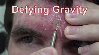 Night Of The Living Squirts | Life With Cystic Acne Documentary #41