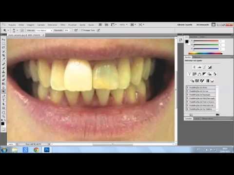 Photoshop Video Aula 1 Como Branquear Os Dentes Youtube