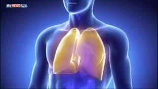 خلل جيني يؤدي لمرض التليف الكيسي