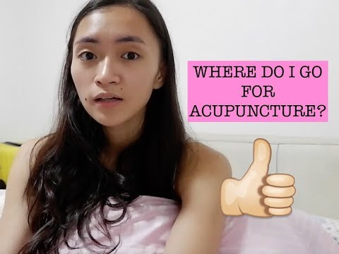 Offstage Series: Affordable & Reliable Acupuncture in Manila | Katrene San Miguel