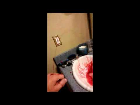 Blood squirts out of dudes hand!