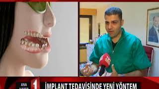 Lazerli Dikişsiz İmplant, TRT 1 Ana Haber - Birkan Taha Özkan