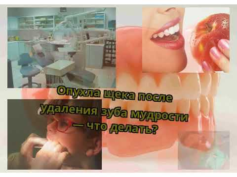 После удаления зуба мудрости опухла щека и болит десна