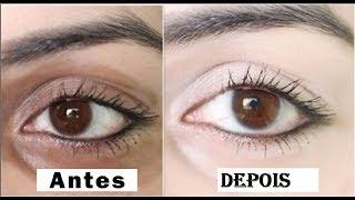 Olheiras e remédio bolsas oculares para