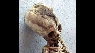 FINALLY: DNA Results Of The Paracas Elongated Skulls Of Peru: Part 1
