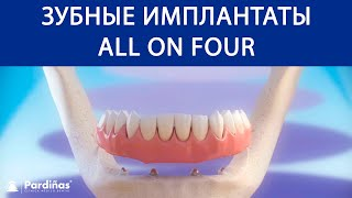Зубные имплантаты «All on 4» ©(3D-видео Clínica Pardiñas (http://bit.ly/1AWGytT) об «All on 4» — виде лечения, показанном при определенных обстоятельствых и..., 2016-11-03T10:05:59.000Z)