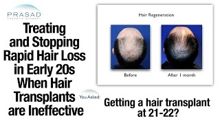 How to Treat Rapid Hair Loss in the Early 20s When Hair Transplants Aren