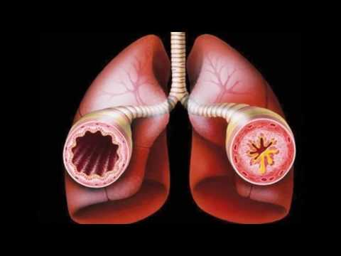 Симптомы и признаки астмы у взрослых