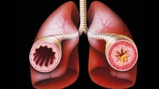 видео Бронхиальная аллергическая астма: симптомы и лечение