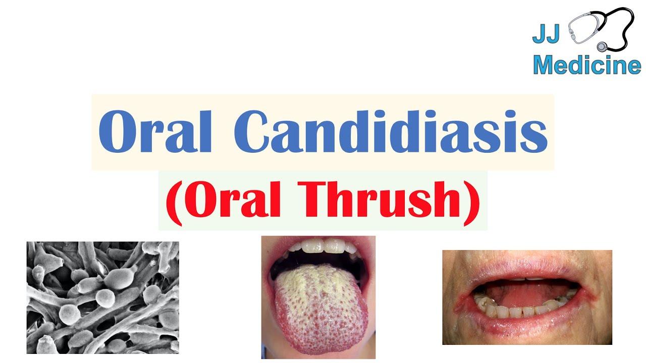 Candida albicans kenetet férfiakban