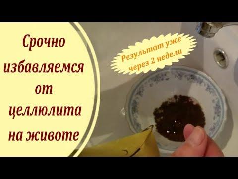 Как убрать целлюлит с живота