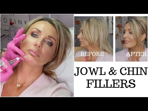 Jowls and Chin Fillers with Before And After Photos - my