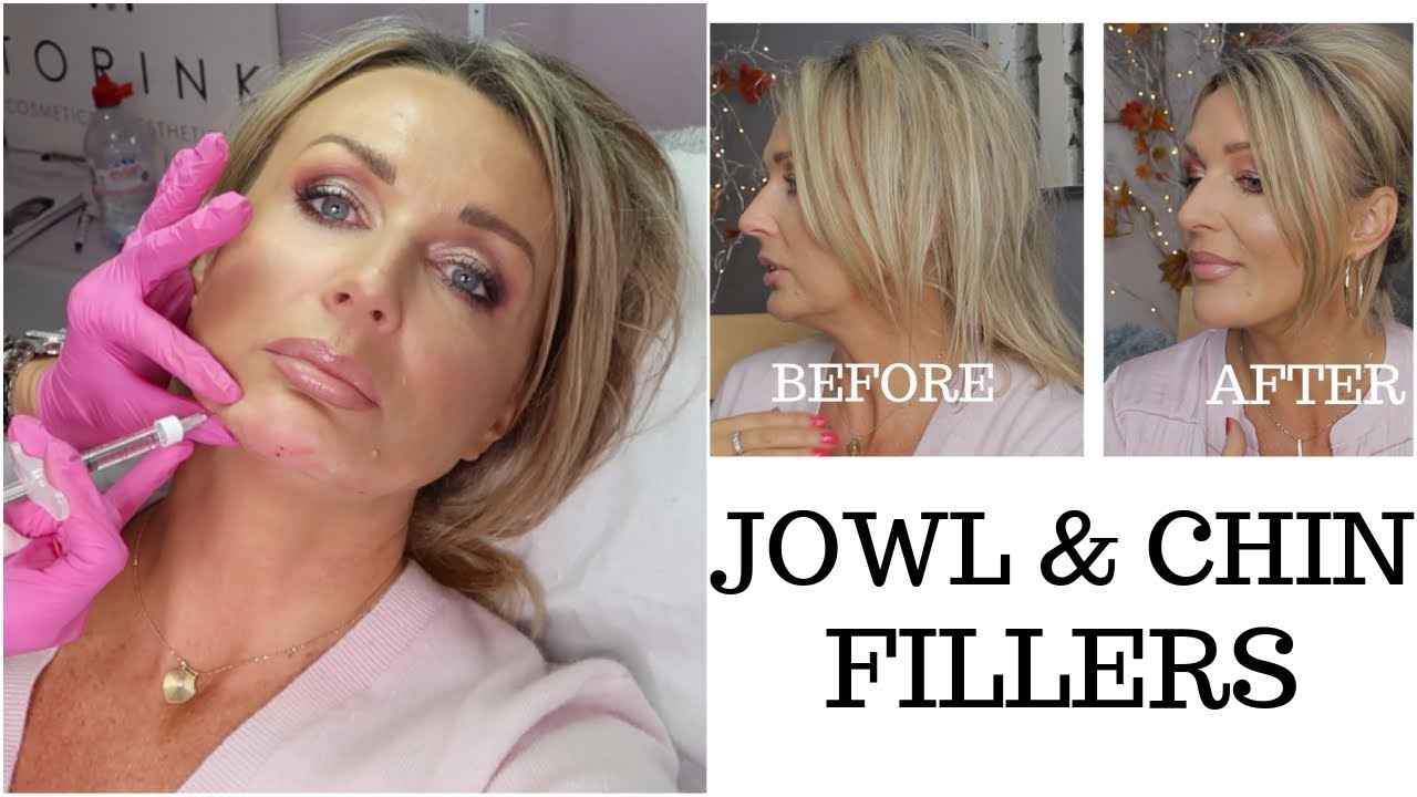Jowls and Chin Fillers with Before And After Photos - my experience