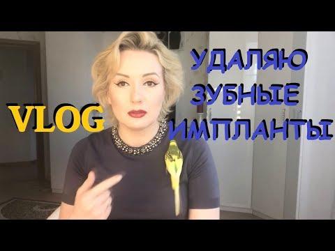 Vlog///ПРОБЛЕМЫ С ЗУБНЫМИ ИМПЛАНТАМИ///ОПЕРАЦИЯ №1 - УДАЛЕНИЕ И ЧИСТКА