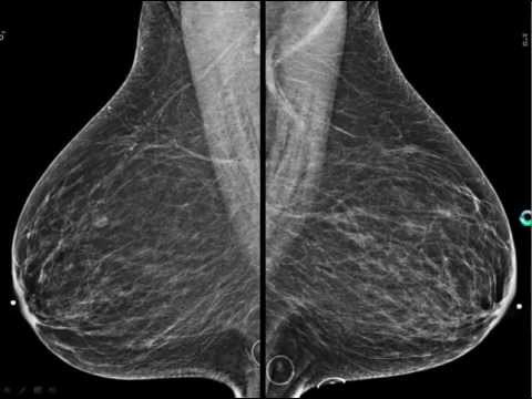 digital breast tomosynthesis dbt Digital breast tomosynthesis (dbt) equipment market segmentation by end user, by product type, by key regions and key players global digital breast tomosynthesis equipment market was valued.