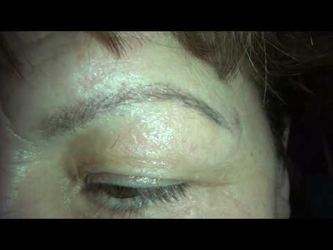 Ботокс (Botox): инъекции, стоимость, противопоказания