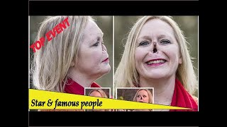 Top Event - This Morning fans in shock as woman suddenly pulls off her prosthetic nose without wa...