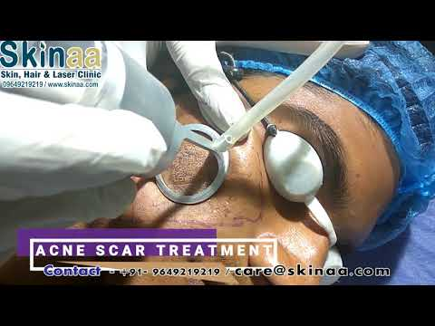 Acne Scar Laser Removal Treatment in India, Jaipur with Fractional Co2 FDA Approved Laser