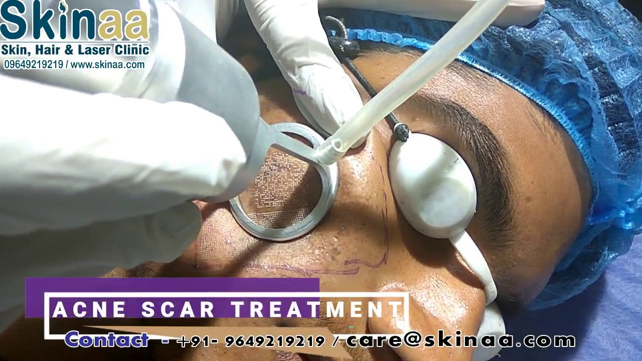 Acne Scar Laser Removal Treatment In Jaipur With Fractional Co2