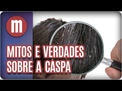 Saúde: mitos e verdades sobre a caspa - Mulheres (15/08/17)