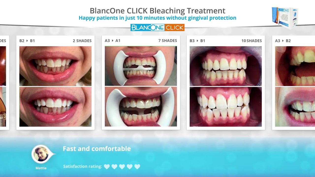 BlancOne - CLICK cases gallery
